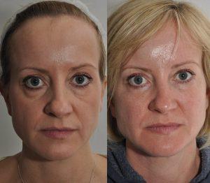 Dermal Fillers - Dr Bela Skin Clinic West London, Chiswick