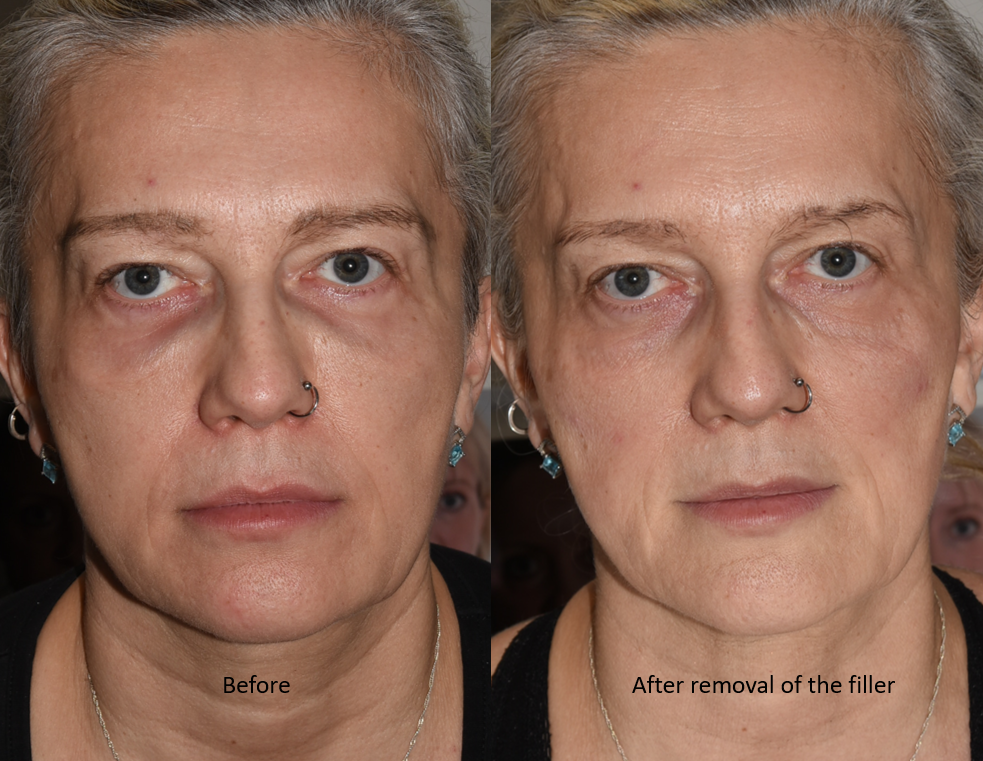 Filler before-after hyalase treatment