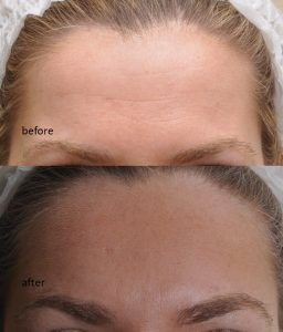 Wrinkle Treatment forehead