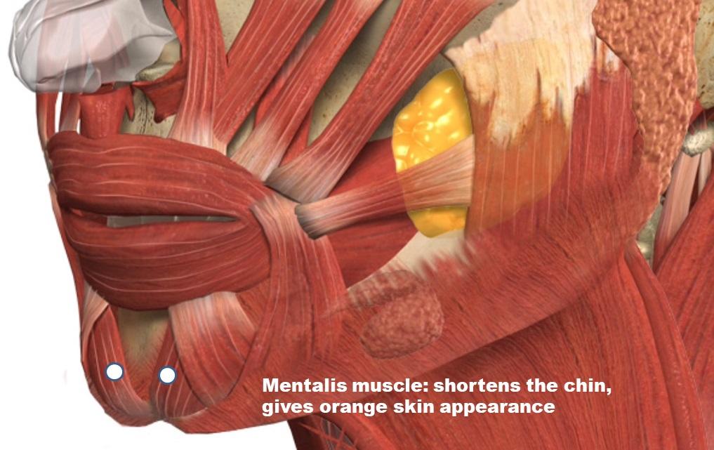 mentalis muscle dr bela clinic london